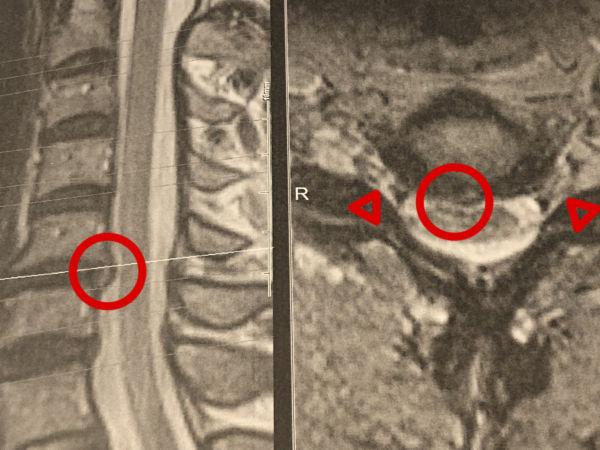 頚椎椎間板ヘルニアMRI画像
