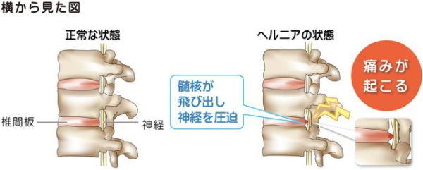 頚椎椎間板ヘルニアイラスト